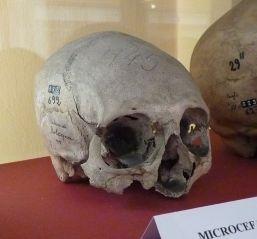 Microcephalic human skull. Museum of Anthropology of the University of Bologna. Image credit: Wikipedia