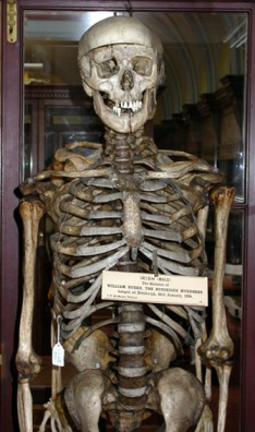 The skeleton of William Burke.