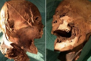 Photo via the DailyMail of the mummified head.