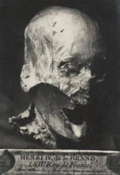 Photo via Phys.org of the mummified head.