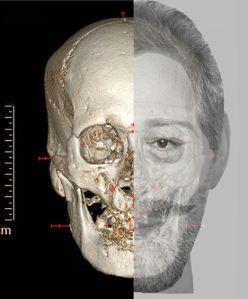 Photo via the DailyMail of a combination digital image of a reconstruction of the face France's King Henri IV is seen, left, and his skull with the reconstruction overlaid is seen at right.