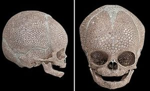 Damien Hirst: For Heaven's Sake, 2008, Platinum, pink and white diamonds. Photo via The Telegraph