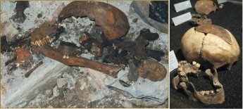 Photos of the human bones discovered at Craven St.
