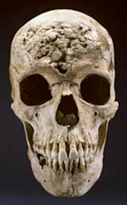 Skull of a male with extensive destruction from late-stage syphilis.  Image courtesy of: Smithsonian Institution