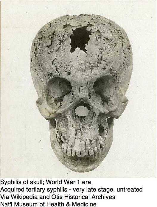 Recent year skull bone peculiar
