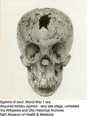 Syphilis of skull
