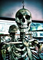 Photo from Facebook page of the School of Biomedical Sciences (The University of Edinburgh): Skeleton of John Howison.  Click here to see full size image.