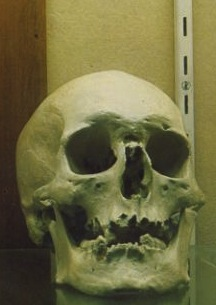 The skull who many believe belongs to Frederick Bailey Deeming