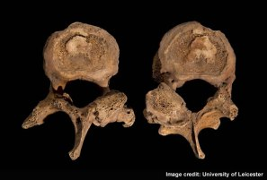 Photo via the University of Leicester of 2 individual vertebrae from Richard III spine.  Click here to see larger image.