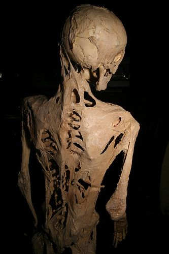 From Wikipedia, the skeleton of Harry Eastlack at the Mutter Museum