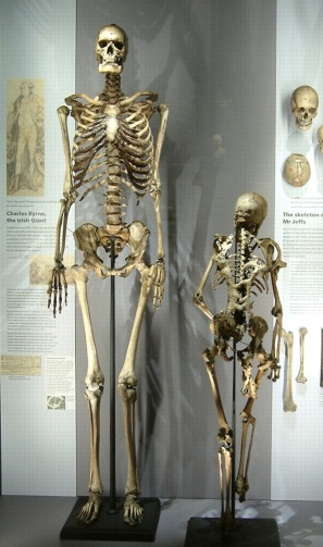 "The 7'7"" tall skeleton of Charles Byrne, the Irish Giant, on display at the Hunterian Museum."
