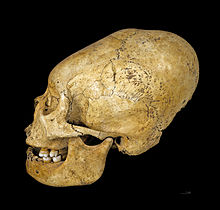 Photo from Wikipedia of a Proto Nazca deformed skull, c 200-100 BC