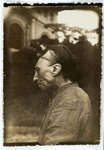 Photo from Wikipedia showing deliberate cranial deformity; band visible in photo is used to induce shape change.
