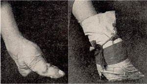 Photo via  Wikipedia.  On the left is a bound foot.  On the right is a bound foot that is bandaged.