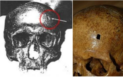 Photo of Celestine's skull and the hole some thought was evidence of murder.