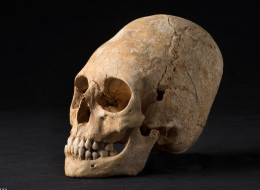 The 1600 year old skull recently unearthed in France showing artificial cranial deformity.