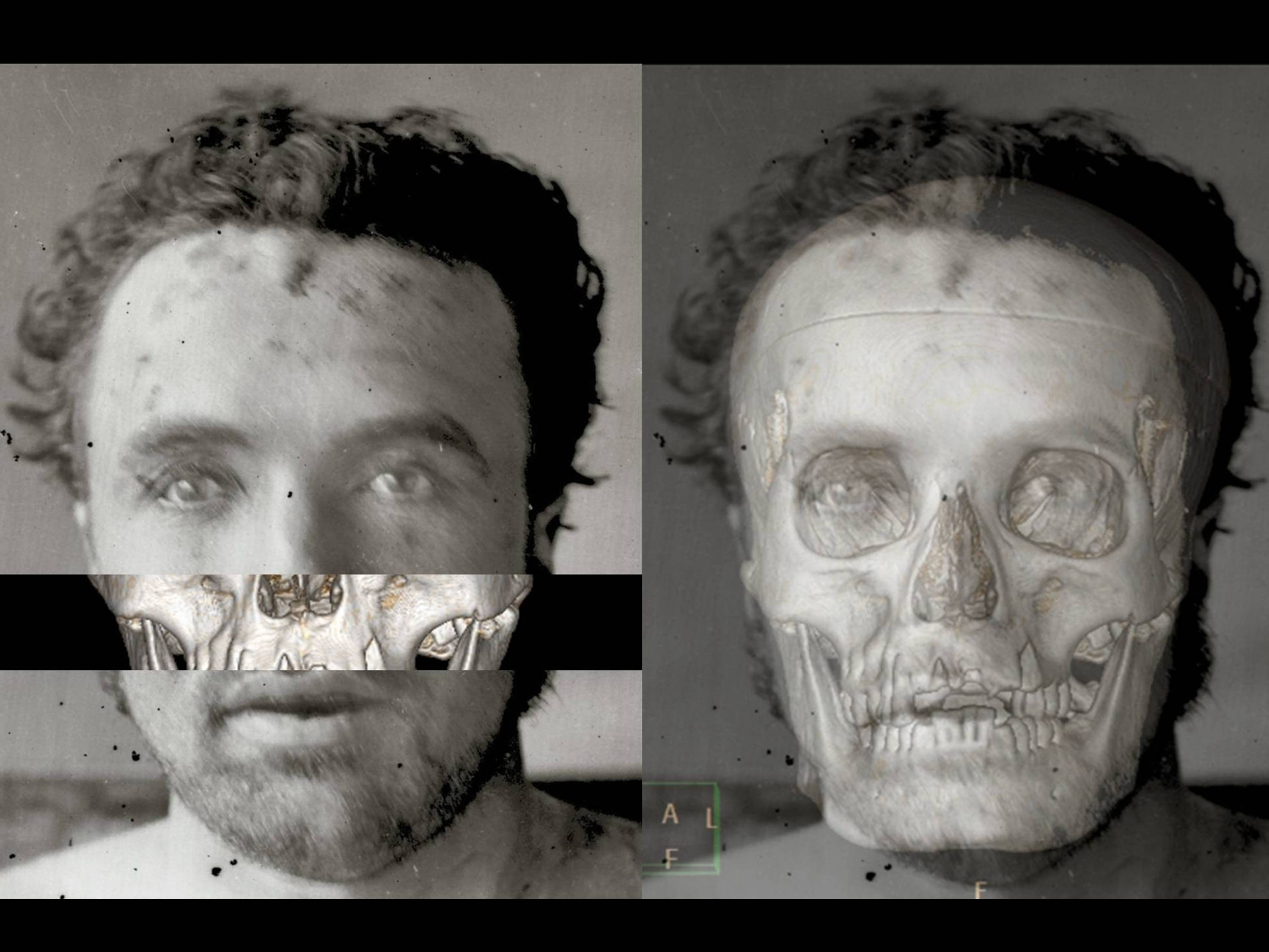 Cranial superimposition of the North Dakota skull and Clell Miller's ...