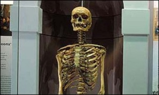 Jonathan Wild's skeleton on display at the Hunterian Museum in London