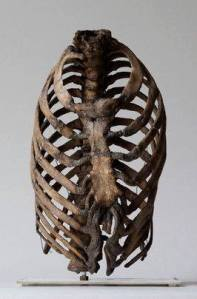 Photo via Tumblr Rib cage showing bent bones caused by corsets.  19th century London.  Hunterian Collection, Royal College of Surgeons, London.