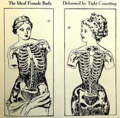 Illustration showing rib cage deformities normal vs. corseted.  Illustration via the Lingerie Addict
