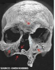 An example of a skull with rhinomaxillary syndrome cause by leprosy.  Photo credit: Gwen Robbins