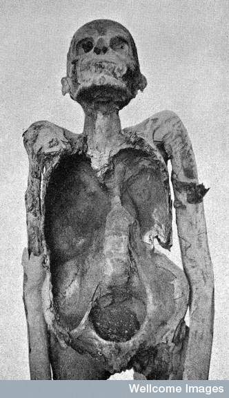 Image of Nespaheran, an Egyptian mummy from the time of the 21st Dynasty with spinal tuberculosis.  Credit: Wellcome Library, London