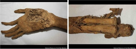 Close up view of the palmar surface of the hand, and the ends of the ulna and radius. Photo credit: National Museum of Civil War Medicine.