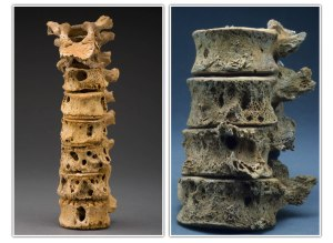Initial destruction of bone in the vertebral bodies due to spinal TB.  Credit: Smithsonian Institution.
