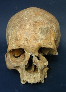"Skull of ""leper warrior"" with leprous destruction and an unhealed gash on the forehead.  Photo credit: Mauro Rubini via LiveScience."