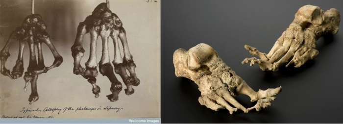Examples of hands and feet with leprous destruction.  On  the left bones of the hand destroyed by leprosy from @ChirurgeonsAppr on Twitter. On the right is an image of foot bones showing resorption caused by leprosy.  Image from Pinterest.
