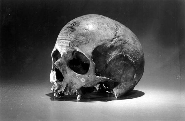 "The skull of Alexander Pearce. The label on the skull reads, ""Skull of Pearce, a convict and cannibal who executed in New South Wales in 18-.  Image credit: Wikipedia"