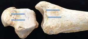 Examples of squatting facets on the front of a tibia (leg bone) and the top of a talus (foot bone).