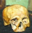 The skull of Henry Debosnys displayed at the Adirondack History Center Museum.