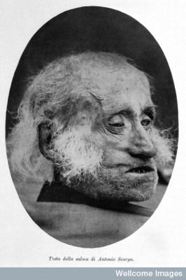 Death head of Antonio Scarpa From: Visita al museo della storia dell' Universita di Pavia.  Image Credit: Wellcome Images