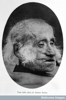 Death head of Antonio Scarpa From: Visita al museo della storia dell' Universita di Pavia.  Image Credit: Wellcome Images