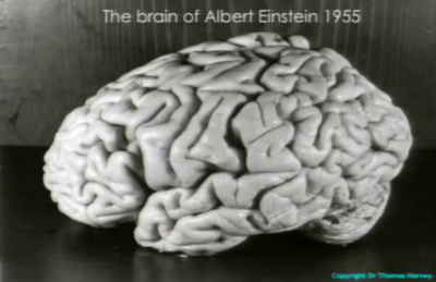 Albert Einstein's brain photographed by Thomas Harvey.  Image credit: Wikipedia