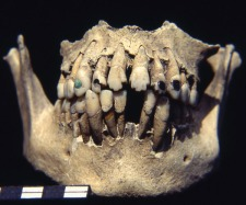 Mayan teeth that have been carved and inlayed with jewels.  Image Credit: Archaeology.