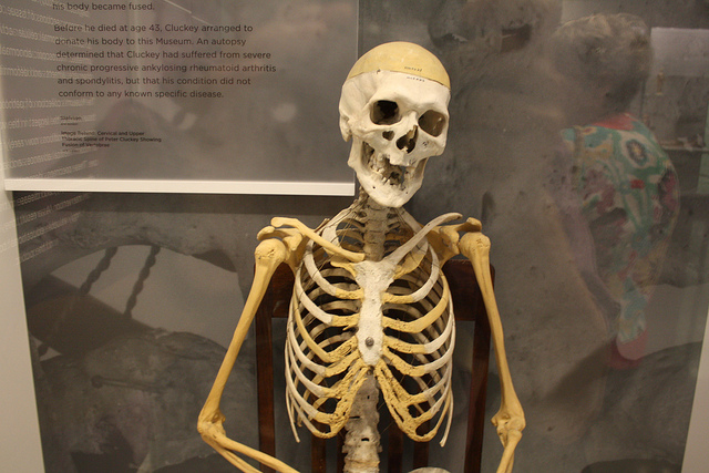 The skeleton of Peter Cluckey on display at the National Museum of Health and Medicine.  Image Credit: Donald West on Flickr.