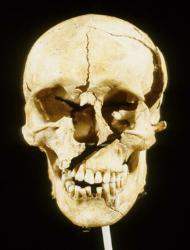 Skull of Towton 25 showing some of his many battlefield injuries.  Image via Blackgate.com