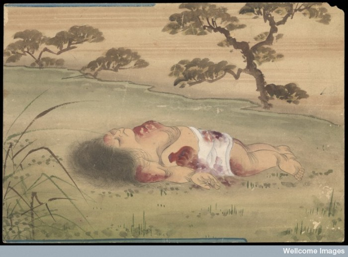 Kusozu: the death of a noble lady and the decay of her body, panel 4 of 9. Putrefaction has started, liver mortis and bloating is evident.