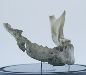 "Mandible showing damage caused by ""phossy jaw."""