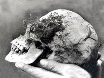 "Photo of ""Bella's"" skull found in the Wych Elm.  Image credit: Atlas Obscura (Public Domain)"