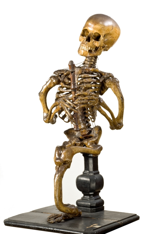 Skeleton with unusual pathology of the lower limbs, preparation attributed to Jean-Joseph Sue père, Paris, late 18th century; purchased 1862, Harry Brookes Allen Museum of Anatomy and Pathology, University of Melbourne.