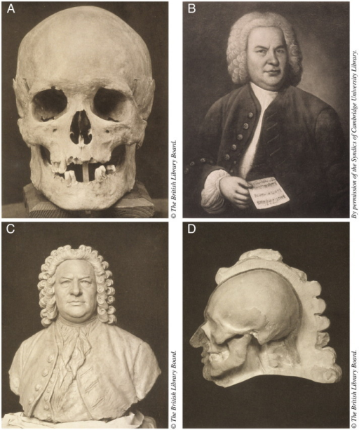 (Upper Left) The skull of Johann Sebastian Bach; (upper right) Haussman's 1746 oil painting of Bach  (lower left) the bust Seffner modelled on a cast; (lower right) the bust, in profile, with left half removed to show the relations of the soft parts to the bone.  Image credit: Meisenbach, Riffarth & Co. from Wilhelm His, Johann Sebastian Bach, Leipzig, 1895,
