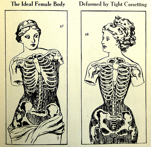 Comparison of the Venus de Milo (the ideal form) and the Victorian women affected by corseting. Image credit: Lucy's corsetry.