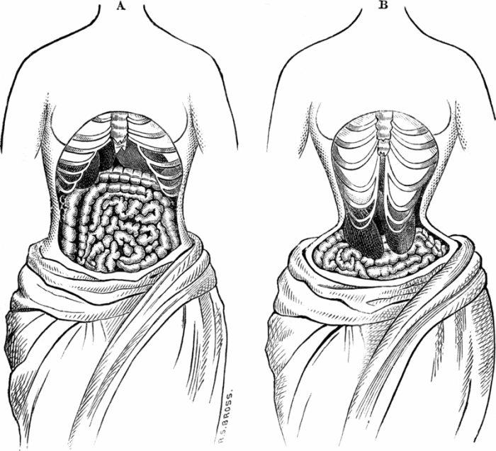 Two sketches depicting what the anatomical changes and deformities caused by corsets (ca. 1894). Image credit: Haabet on Wikipedia. {{PD-US}} – published in the US before 1923 and public domain in the US