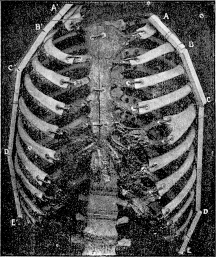 Photograph from Dr. O'Followell's Le Corset showing a rib cage deformed by a corset (ca. 1908). Image credit: Haabet on Wikipedia. {{PD-US}} – published in the US before 1923 and public domain in the US